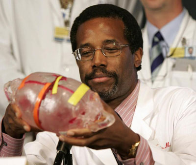 Dr. Ben Carson holds a model of the heads of conjoined twins during a 2004 news conference. (AP)