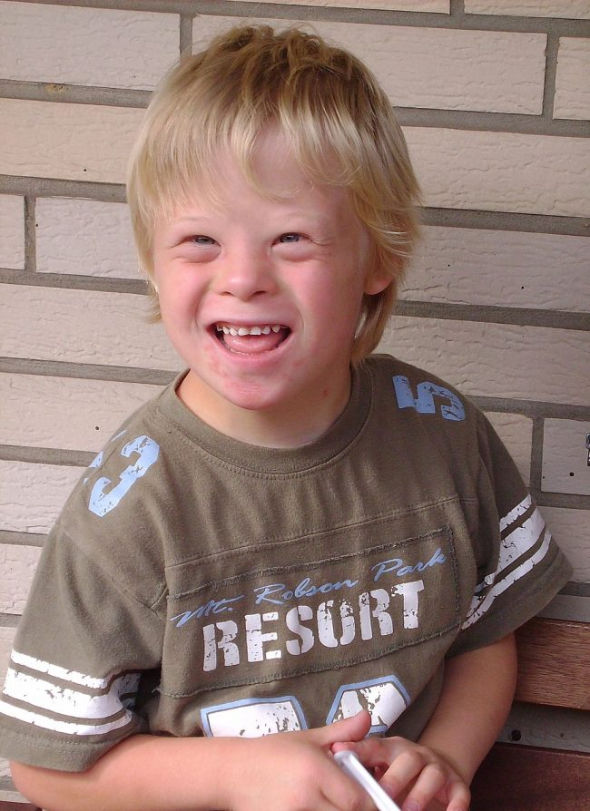 Down Syndrome Photo — Boy — 8 Years Old — Smiling — Wikipedia — Saved Wednesday 8-16-2017